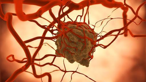 زیست تراشه ای با قابلیت آنالیز سلول های سرطانی ساخته شد