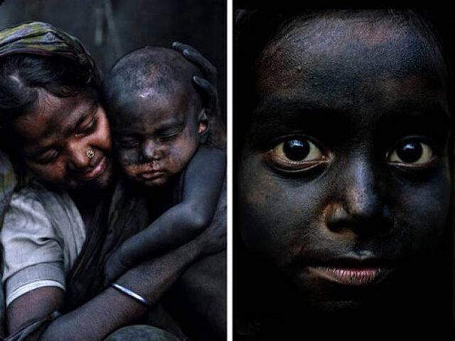 این بچه ها هر روز سیاه تر می شوند!