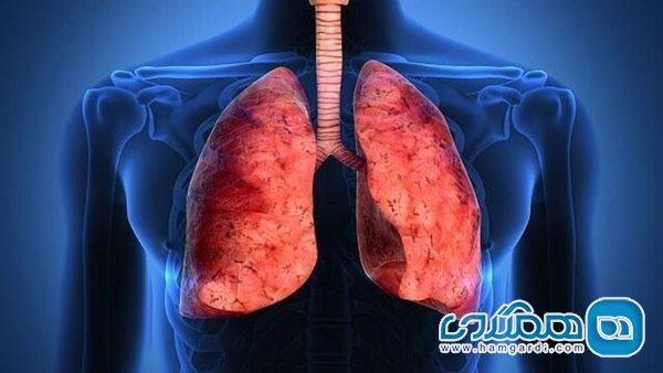 از کجا بفهمیم ریه هایمان درگیر کرونا شده است؟